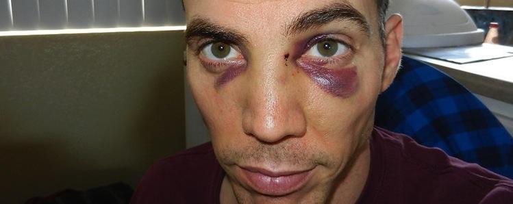Steve-o broken nose