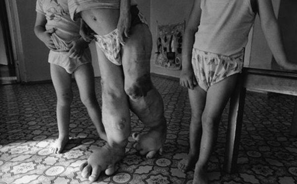 chernobyl-babies