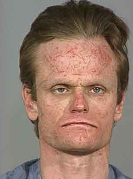 For that man with half head mugshot for