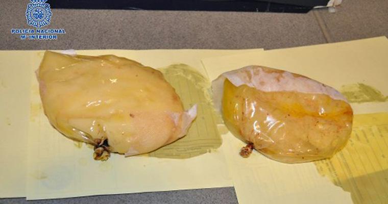 783610-cocaine-breast-implants