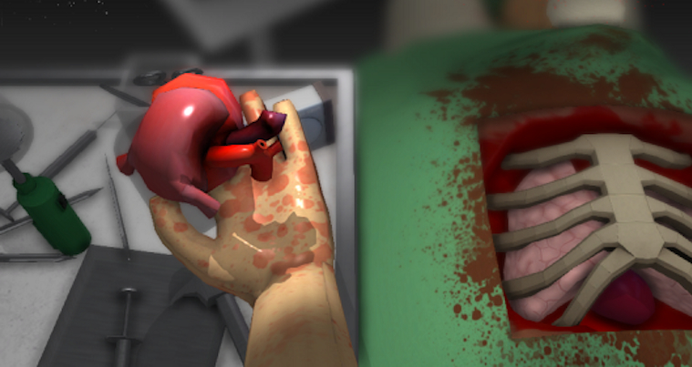 Open Heart Surgery Simulation Game