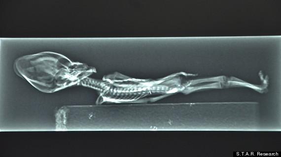 Ataxcama Humanoid Alien - Sirius - X-Ray