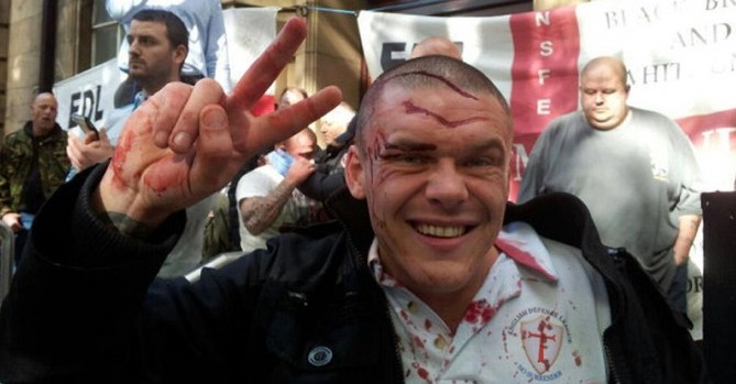 EDL man covered in blood