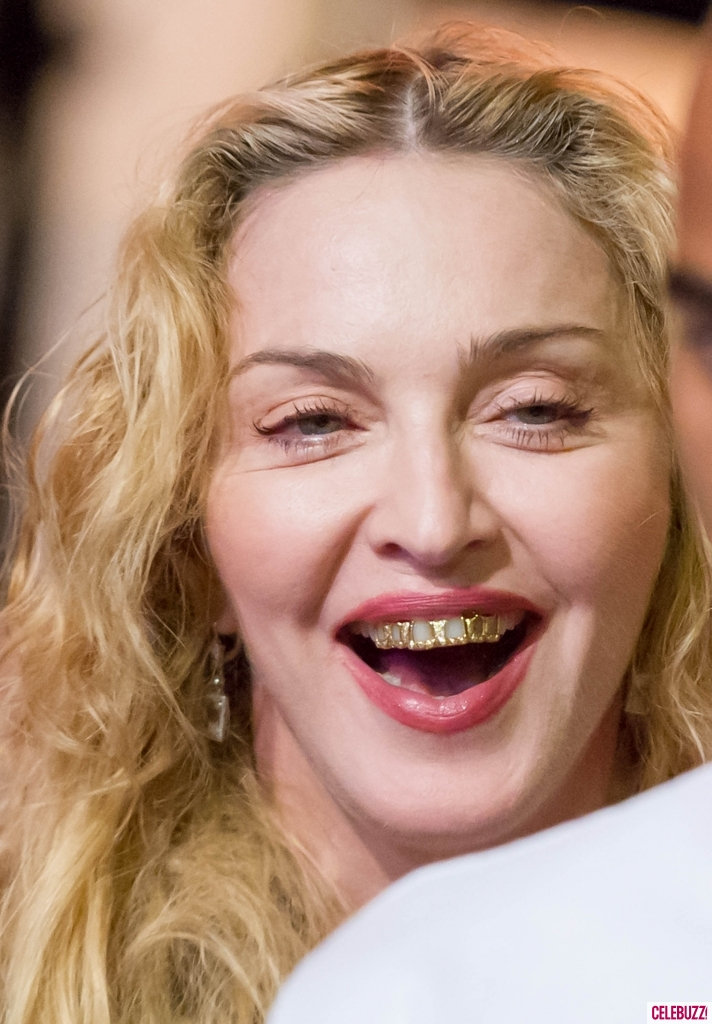 Madonna Is Wearing A Grill And It Looks Horrific - Sick ...