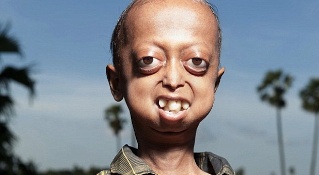 Progeria-Featured-637x350.jpg
