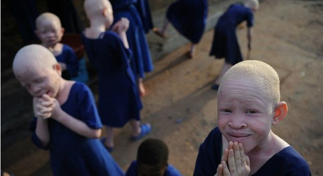 Modern Africa Witch - Albino Children - Tanzania