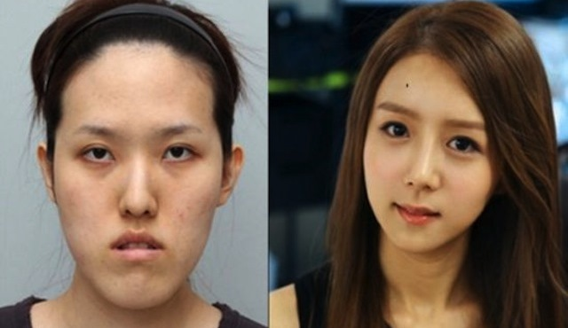 Here S Why South Korean Plastic Surgeons Are Considered Among The Best In World