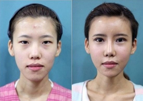 Asian Eyelid Plastic Surgeon Beverly Hills & NYC - Dr. Harrison Lee