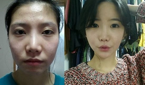 issue of excessive plastic surgery in south korea Korean reality show aims to undo excessive plastic surgery  in one famous episode, a south korean woman injected cooking oil into her face, bloating it.