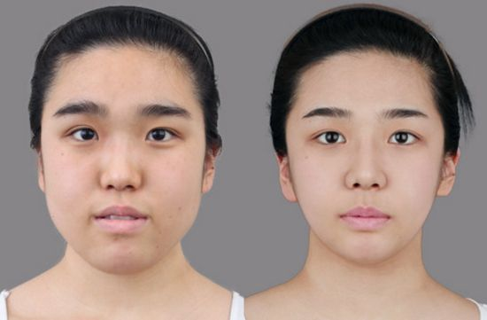 south korea plastic surgery before after