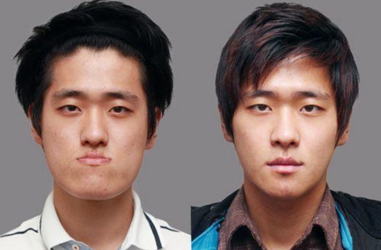 korea surgery 2