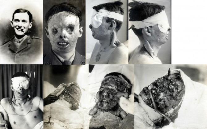 First Plastic Surgery - Harold Gillies - Henry Ralph Lumley