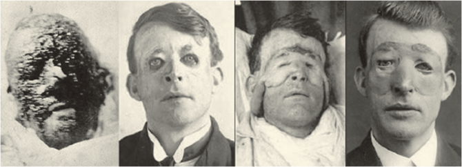 First Plastic Surgery - Harold Gillies - Walter Yeo