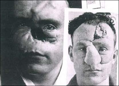 First Plastic Surgery - Harold Gillies - William M. Spreckley 2