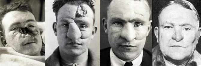 First Plastic Surgery - Harold Gillies - William M. Spreckley