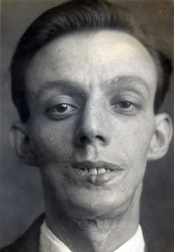 First Plastic Surgery - Harold Gillies - Willie Vicarage 4