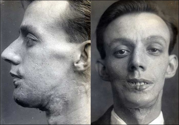 First Plastic Surgery - Harold Gillies - Willie Vicarage