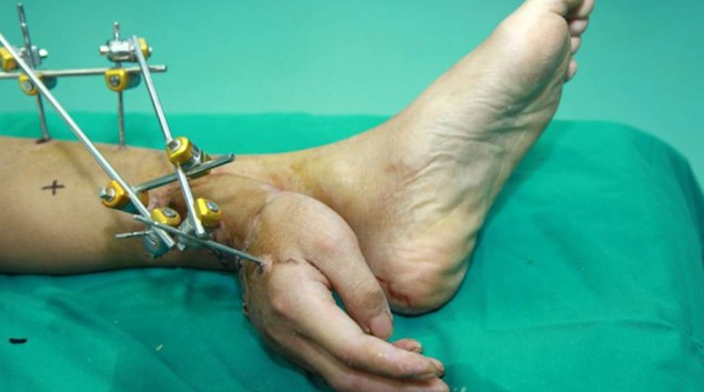 Severed Hand Ankle Featured