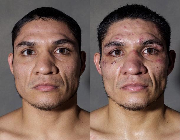 boxer battered