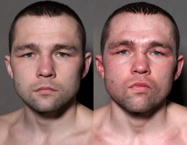 PHOTOS: Boxers' Faces Before And After They Step Into The