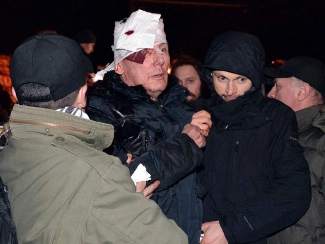 Ukraine Naked Protestor - Injured