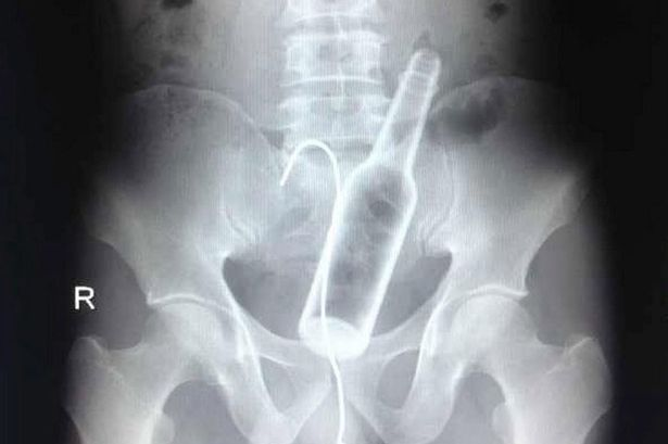 X-Ray-of-bottle-stuck-up-mans-bottom-3007510