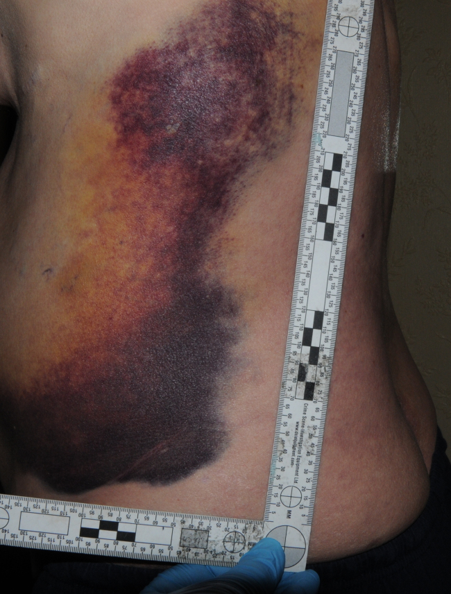 assault-injury-pic-2