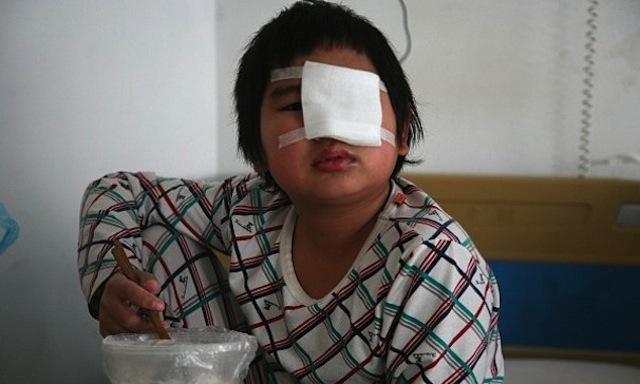 kid slapped