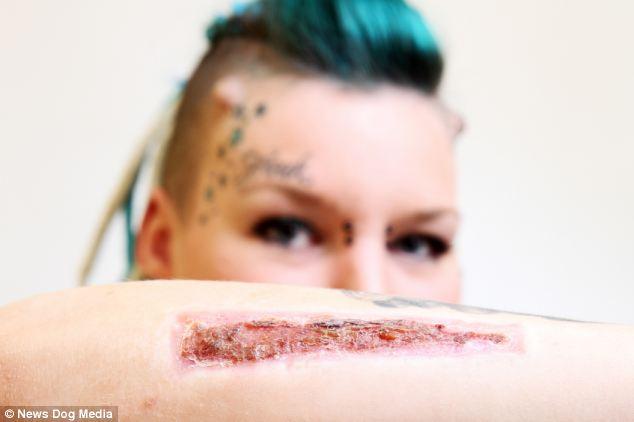 Woman Cuts Off Tattoo And Sends To Ex Boyfriend 1