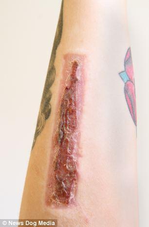 Woman Cuts Off Tattoo And Sends To Ex Boyfriend 2