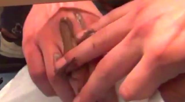 Shitty Hands