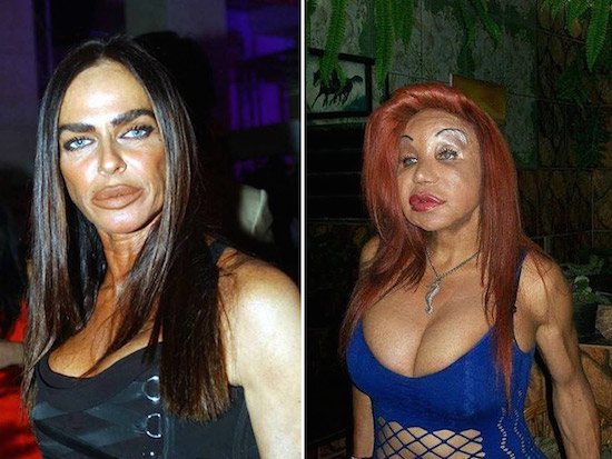 PLastic Surgery Gone Wrong 3