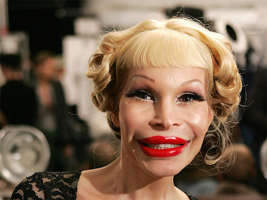 Plastic Surgery Gone Wrong 12