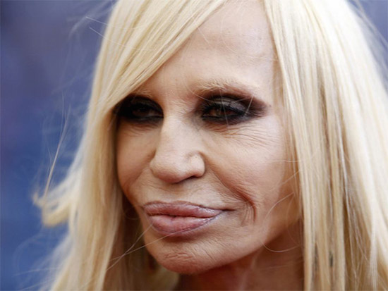Plastic Surgery Gone Wrong 15