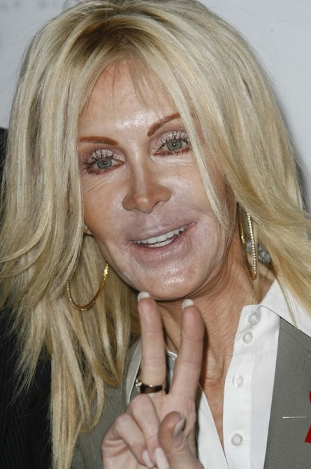 Plastic Surgery Gone Wrong 17