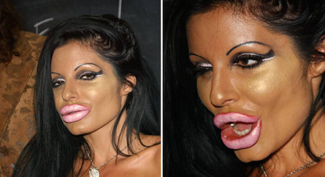 Plastic Surgery Gone Wrong Featured