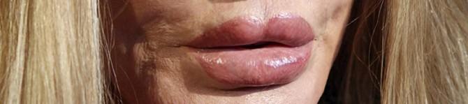 Jocelyn Wildenstein - lips