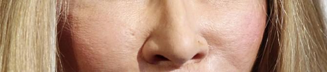 Jocelyn Wildenstein - nose