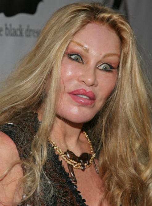 Jocelyn Wildenstein - weird face