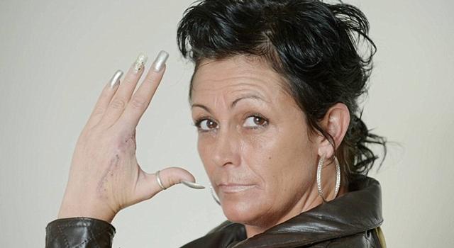 Andrea Wallce False Widow amputation finger