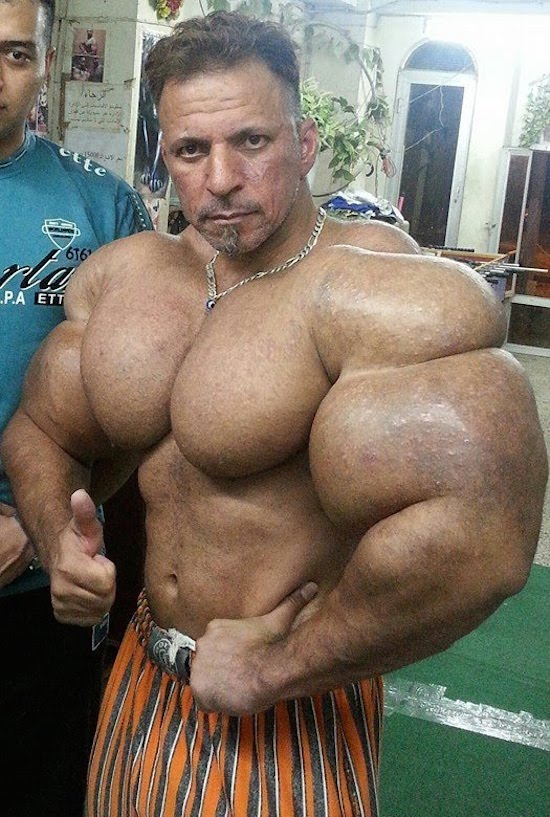 synthol and steroid bodybuilder 1