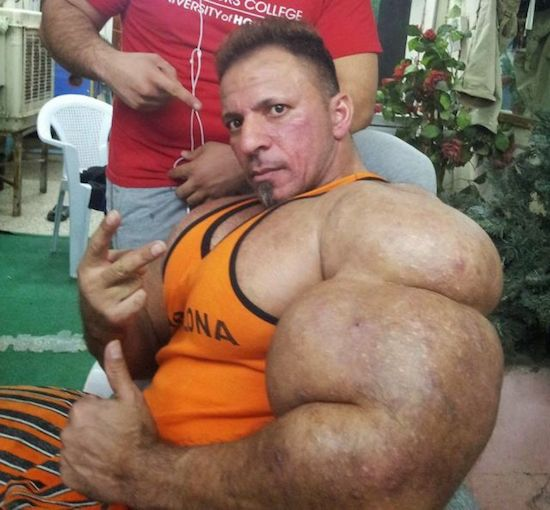 synthol and steroid bodybuilder 10