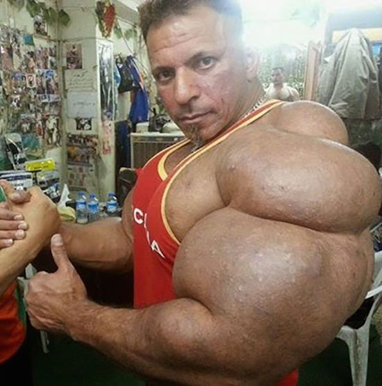 synthol and steroid bodybuilder 11