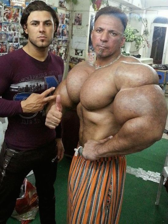 synthol and steroid bodybuilder 17