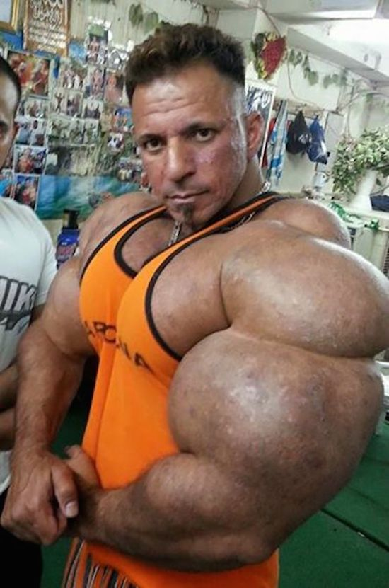 synthol and steroid bodybuilder 18
