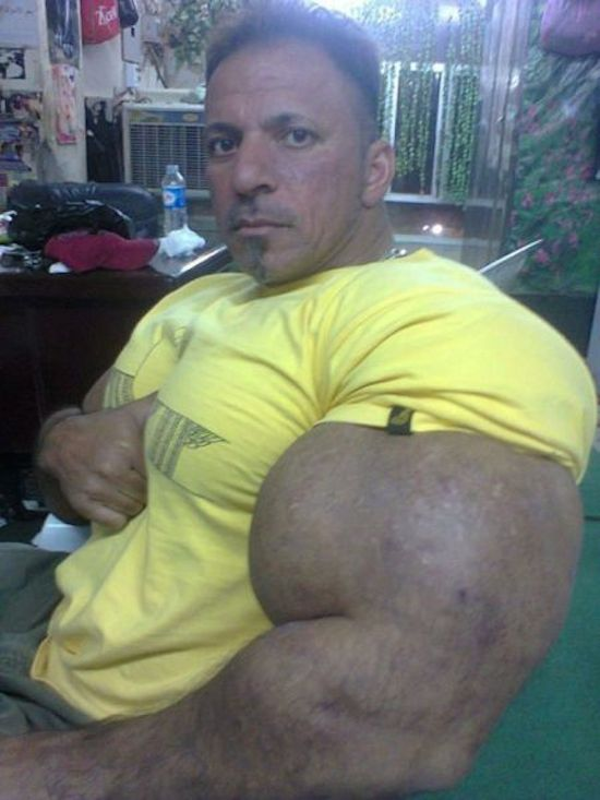 synthol and steroid bodybuilder 19