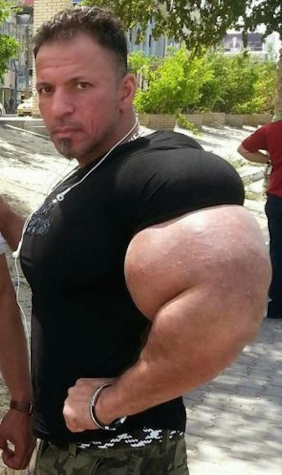 synthol and steroid bodybuilder 21