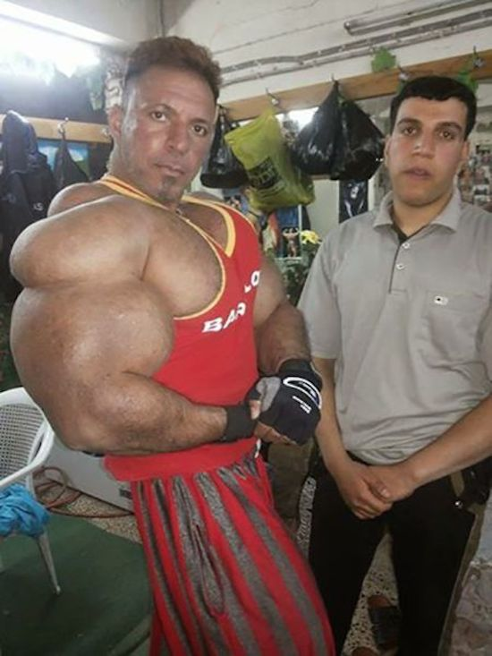 synthol and steroid bodybuilder 22
