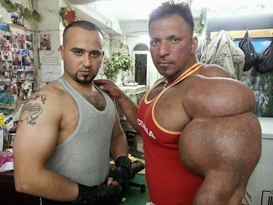 synthol and steroid bodybuilder 3