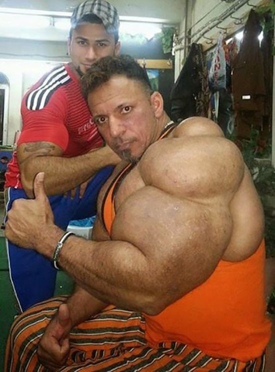 steroids use gone wrong